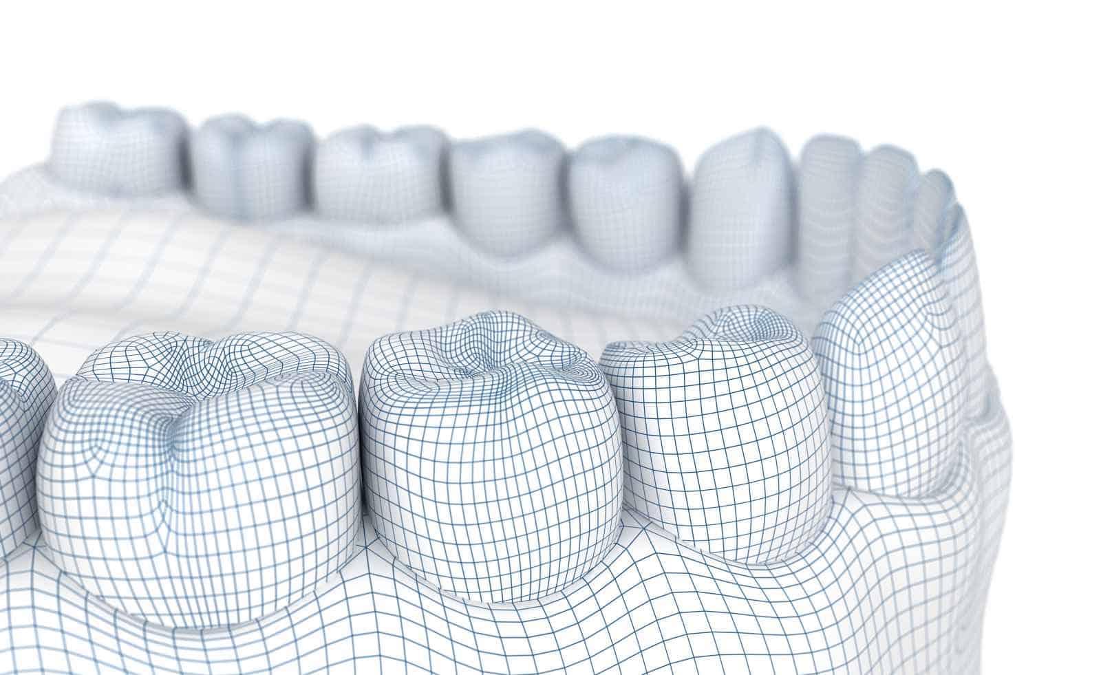 protesi dentali a brescia