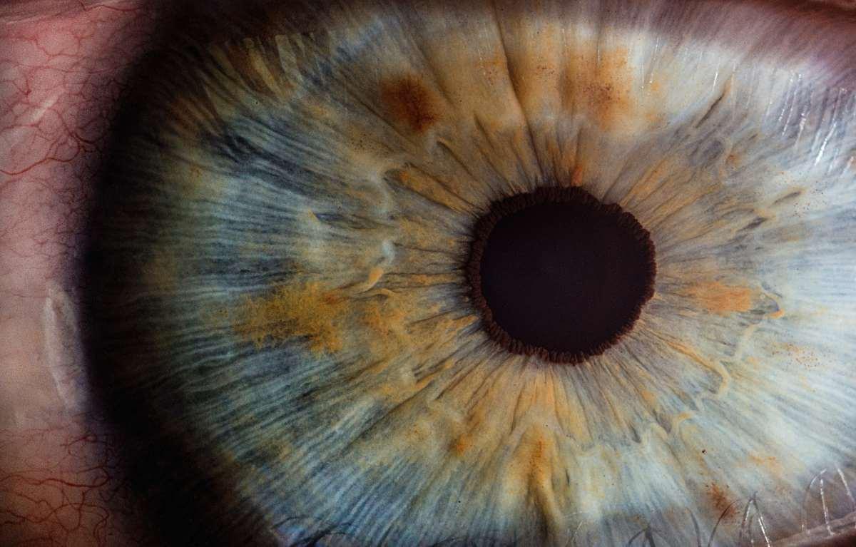 chi è optometrista